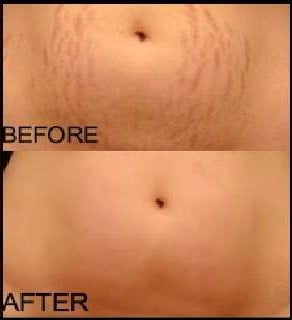 How to get rid of post-pregnancy stretch marks