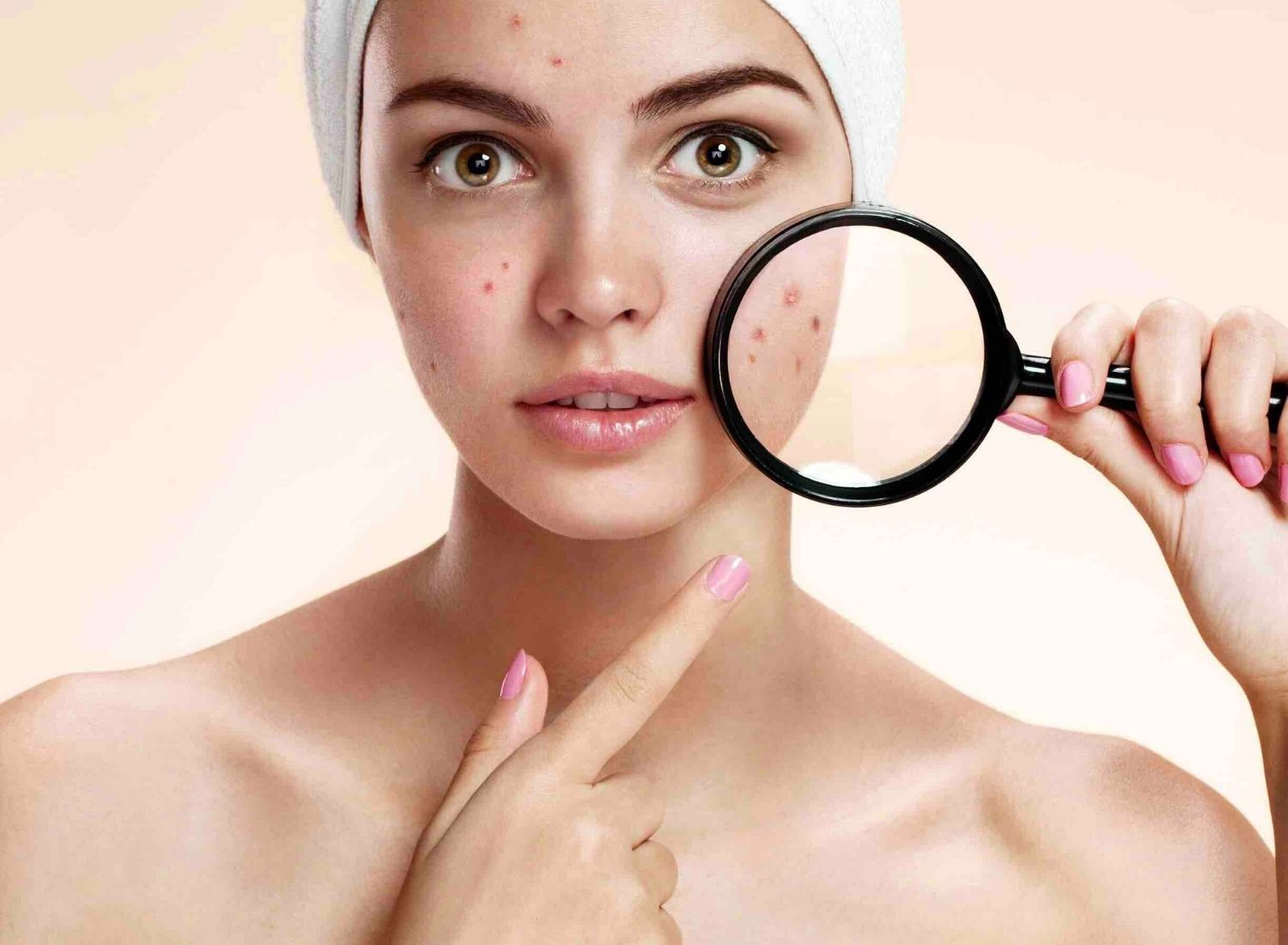 Top 15 Ways To Prevent Acne At Home