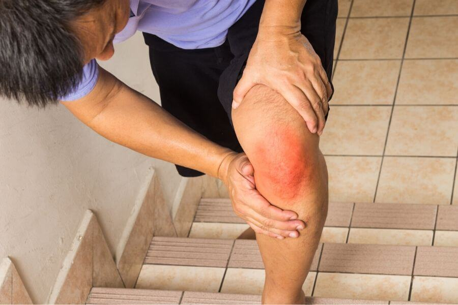 Provides Relief From Arthritic Pain
