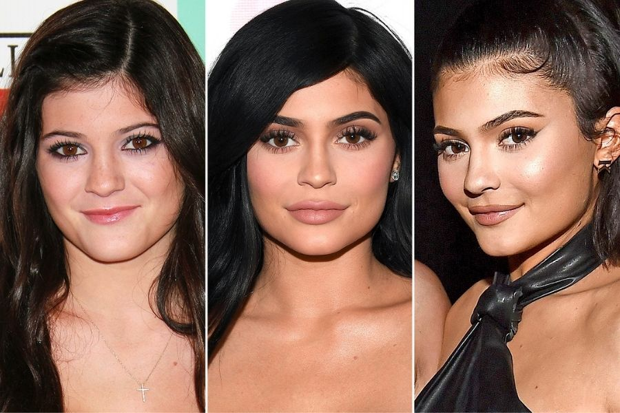 Kylie's Famous Lip Fillers:
