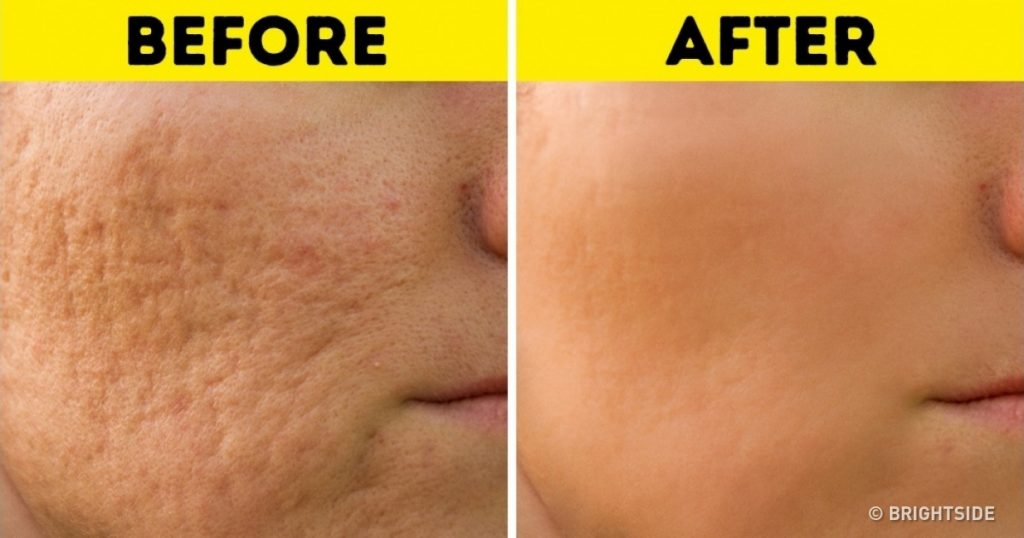 How to permanently reduce scars
